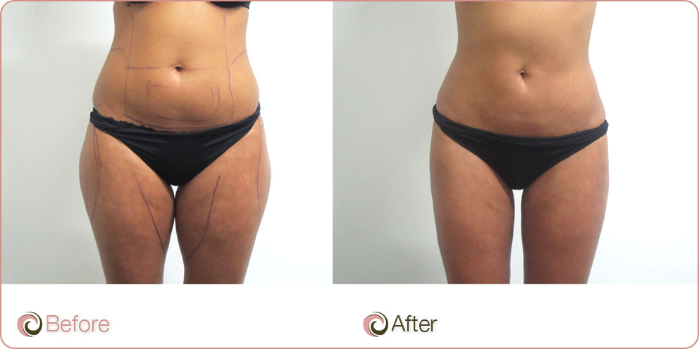 Thighs LiposuctionLiposuction Sydney