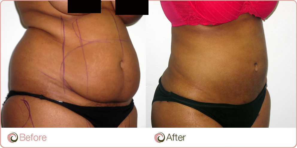 Mega Liposuction Results Liposuction Sydney