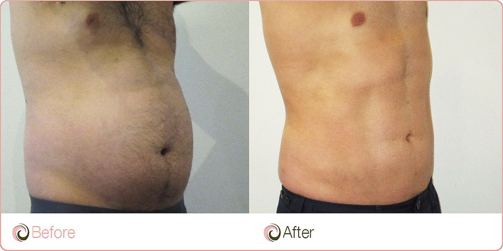 Vaser Lipo Male Liposuction Sydney Before After